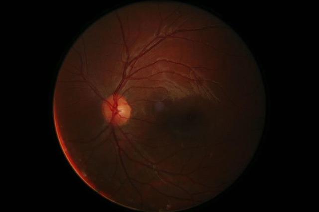 Digital retinal photography eyeball digital, science technology.