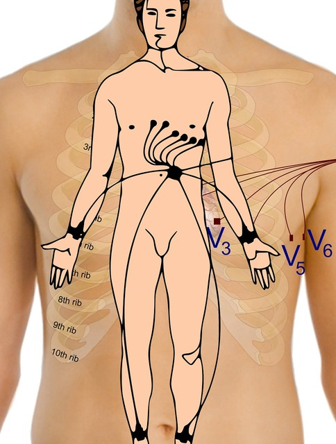 Electrocardiogram body points.