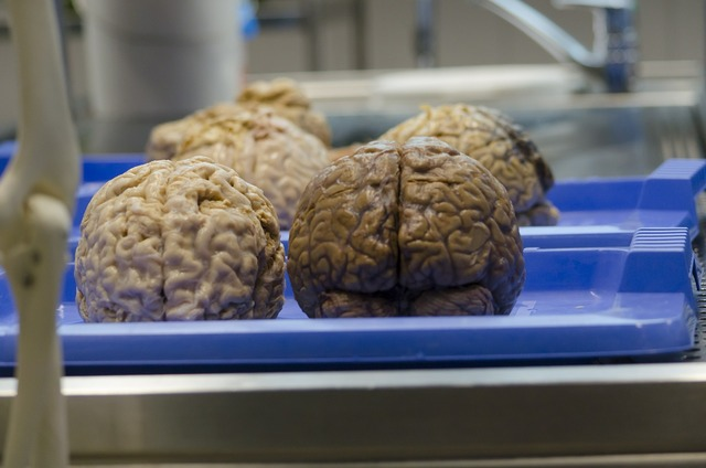The brain medical science surgery.